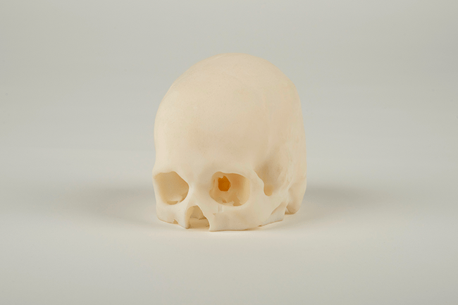 3D model of an Infant Skull
