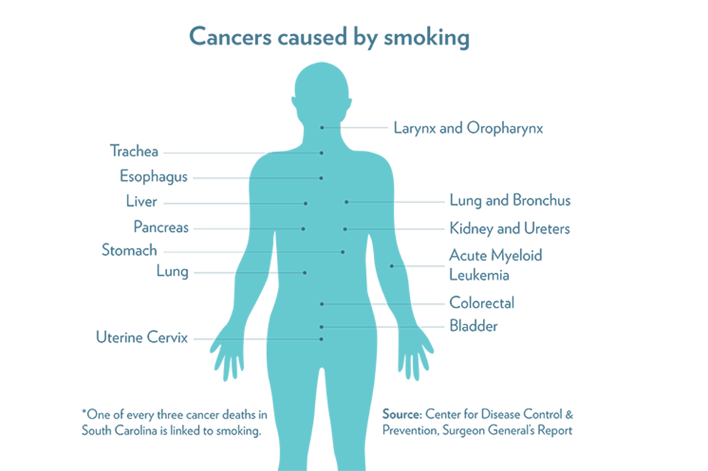 Locations of cancers caused by smoking