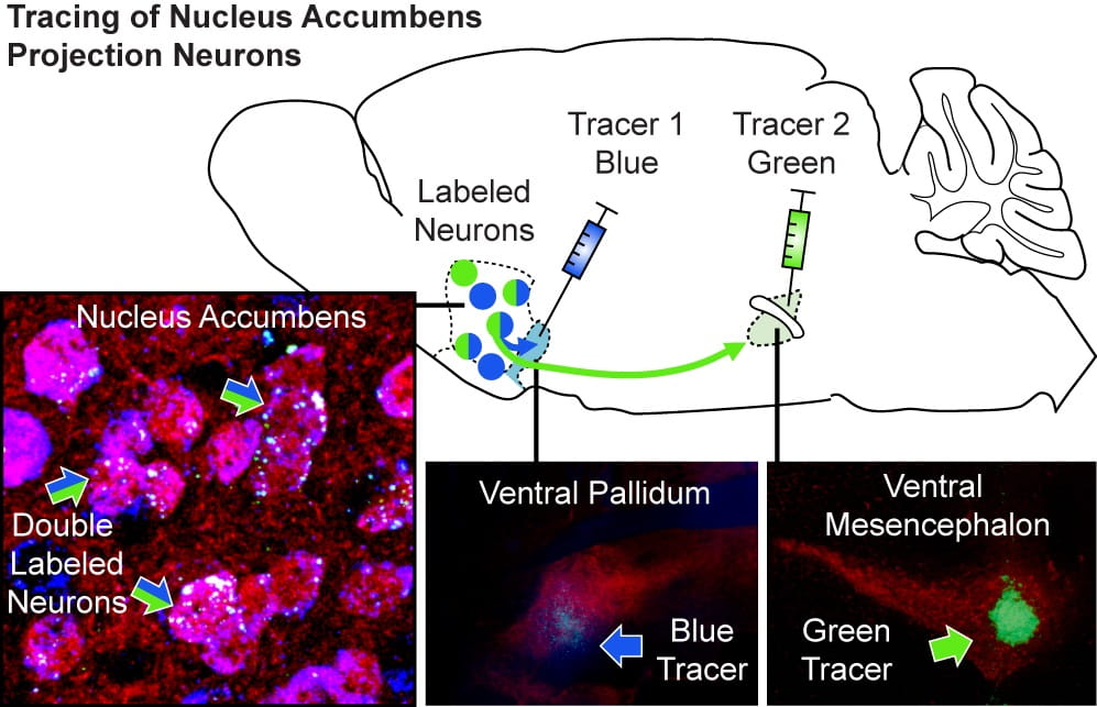 Tracings of nucleus accumbens projection neurons