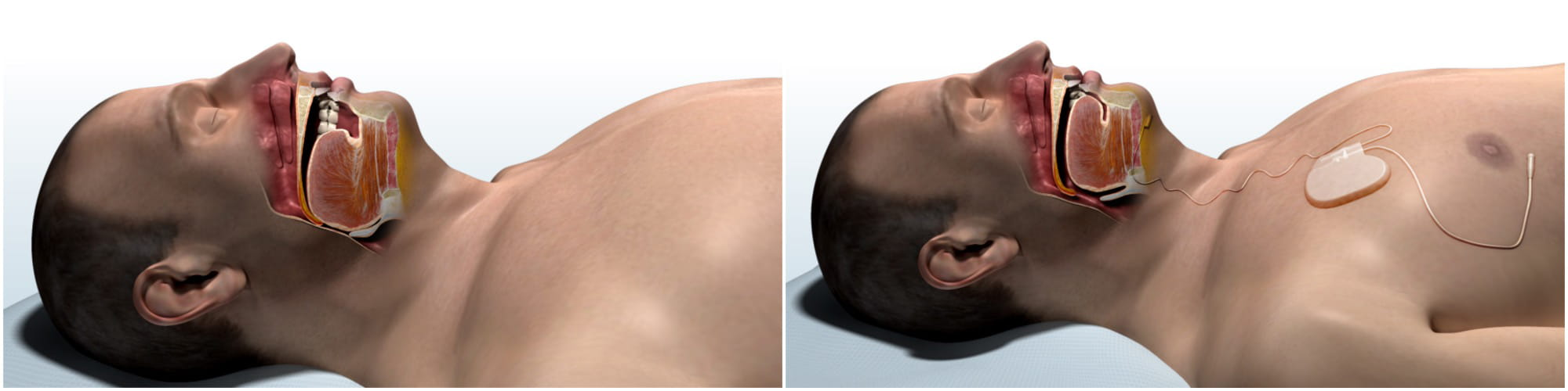 computer generated drawings of the anatomy of a man's throat and mouth during sleep