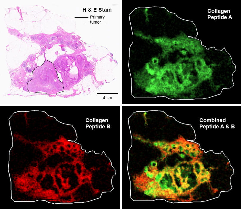 examples of collagen distribution in breast cancer imaging