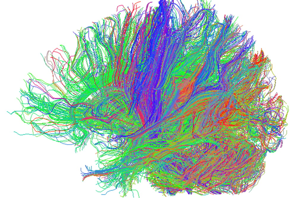 Squiggles in green, red and blue show the neural tracks in the brain