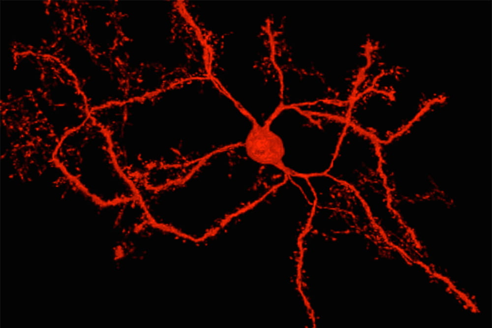 image of a neuron, dyed red, with long tentacles like an octopus