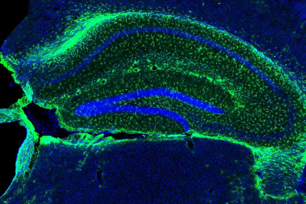 A hippocampal slice showing astrocytes in green.